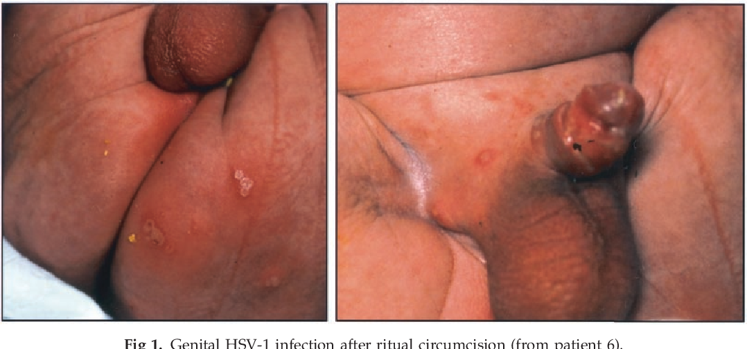 Figure 1 from Neonatal genital herpes simplex virus type 1 ...
