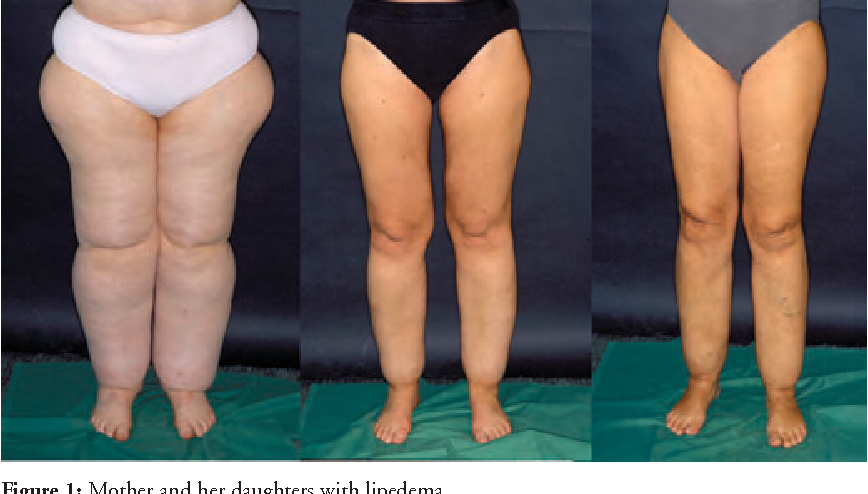 Figure 1 from Liposuction is an effective treatment for