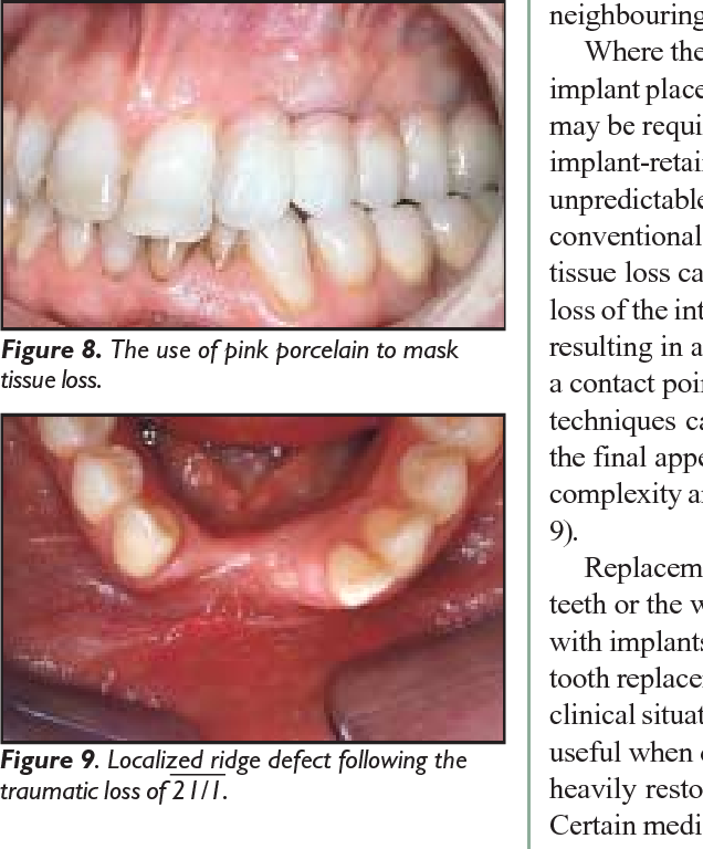 Figure 9 from Replacement of missing teeth with fixed