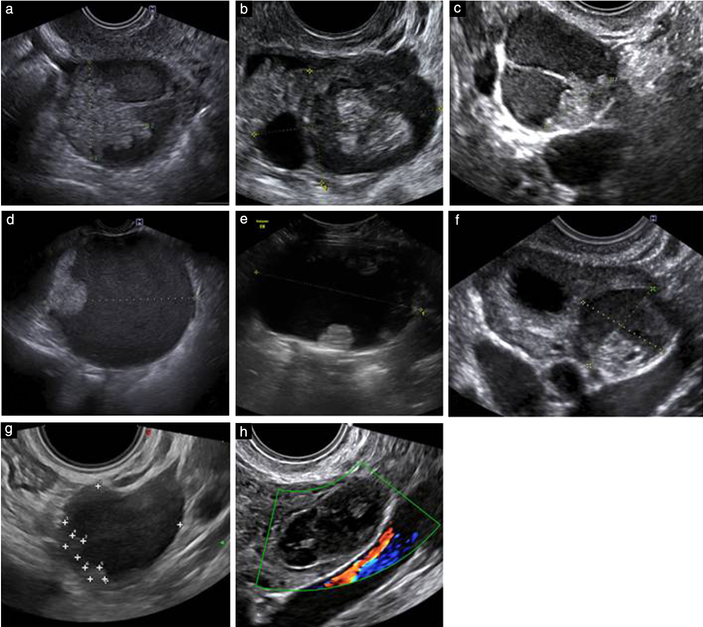 Figure 3 From Imaging In Gynecological Disease 11 Clinical And Ultrasound Features Of Mucinous Ovarian Tumors Semantic Scholar