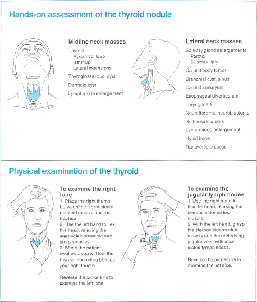 Figure 4 from Evaluation and treatment of thyroid nodules: a