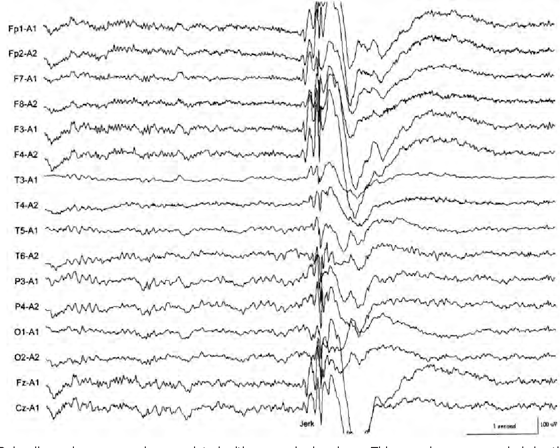 Figure 9 from The EEG in selected generalized seizures