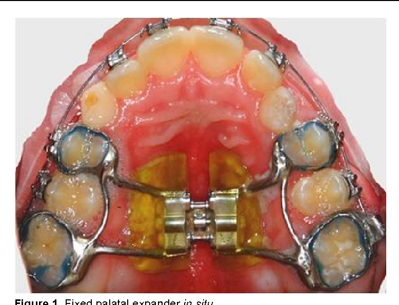 Figure 1 from Oral Biofilm Analysis of Palatal Expanders by