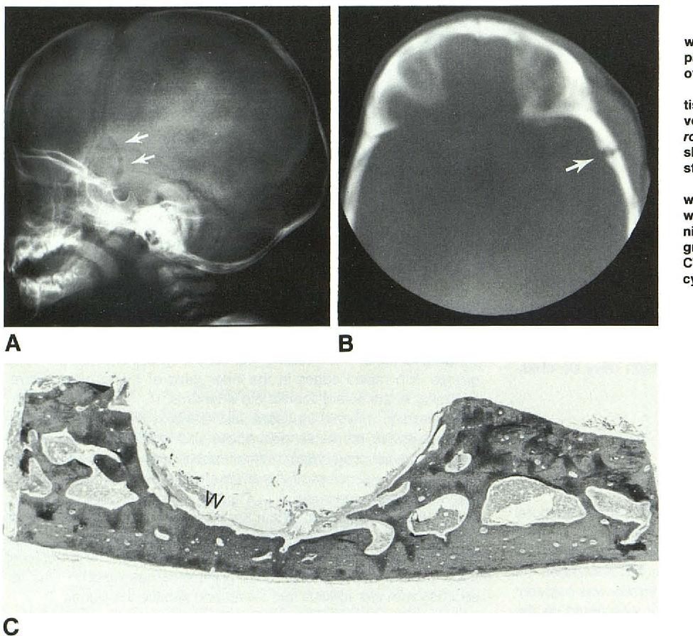 PDF] Temporoparietal dermoid cysts with intracranial