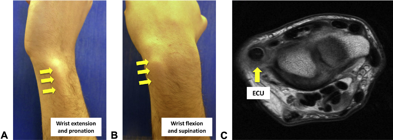 Figure 1 from Hand and wrist injuries in golf  - Semantic