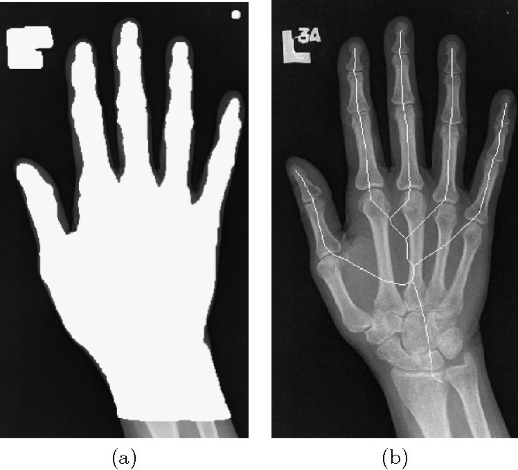 Pdf Finger Joint Modelling From Hand X Ray Images For Assessing Rheumatoid Arthritis Semantic Scholar Image of phalanges, gray, radius. finger joint modelling from hand x ray