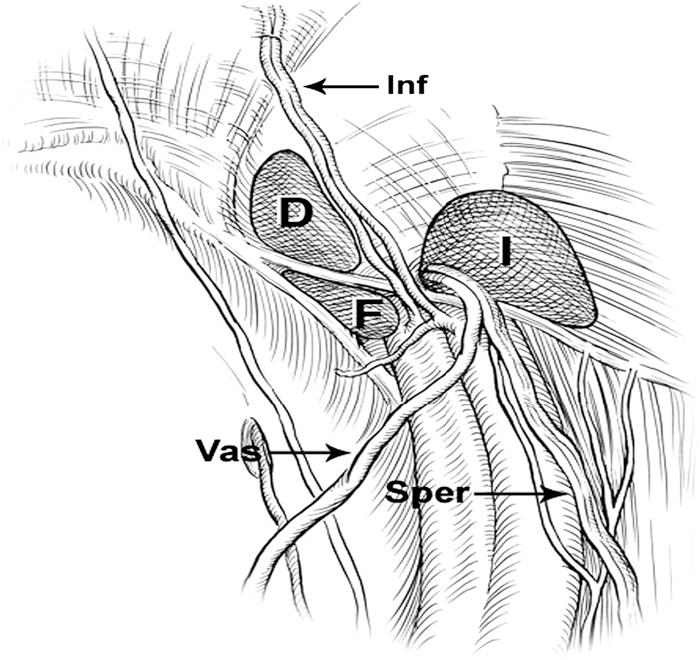 Figure 1 from Laparoscopic inguinal hernia repair