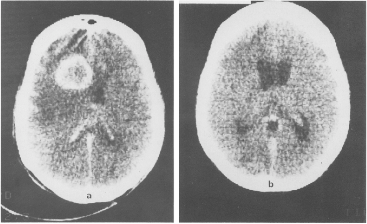 Brain Metastases From Colon Cancer Semantic Scholar