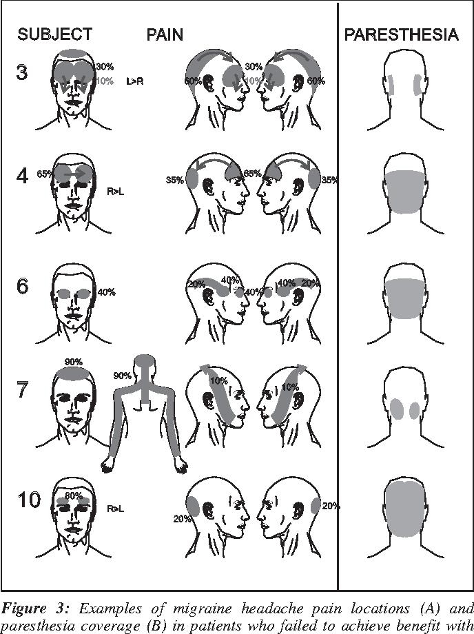 PDF] Occipital stimulation for chronic migraine: patient