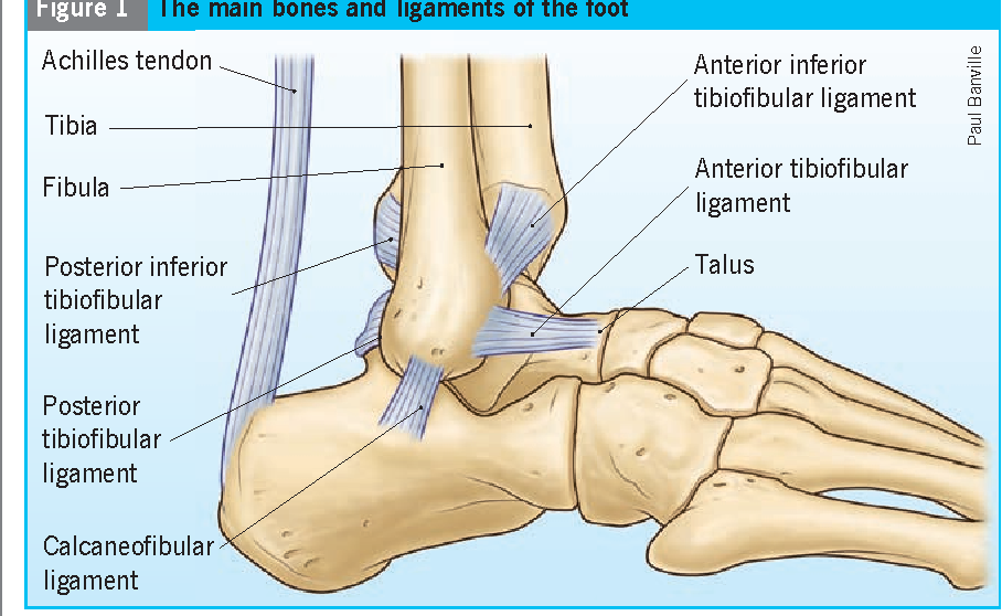 Figure 1 from Avulsion fracture of the calcaneal tuberosity