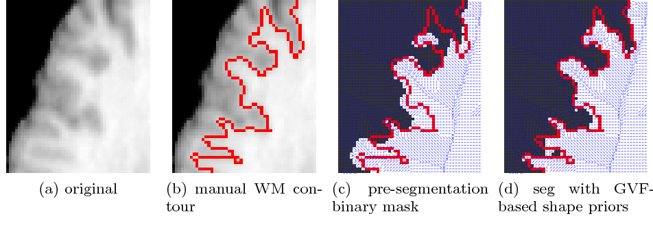 Figure 9: The GVF-based shape prior is flexible. Even though the pre-segmentation boundary (white mask in (c)) is not quite accurate around the white matter boundary compared to the manual delineation (red contours), the segmentation using the GVF-based shape prior (white mask in (d)) is still able to take advantage of the shape information, and achieve accurate segmentation with respect to the manual contour. Small blue arrows in (c) and (d) are the representation of the GVF-based shape prior computed from the pre-segmentation (zoom in to see more details).