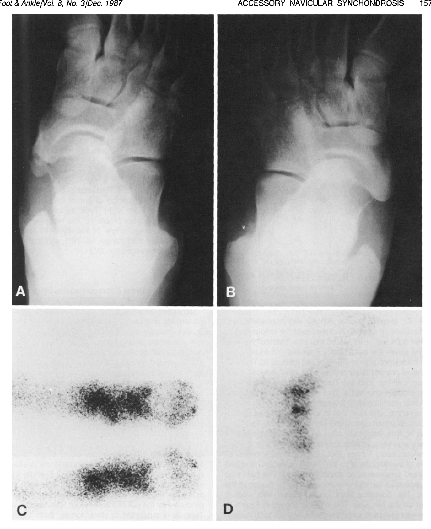 Biomechanics Of The Accessory Navicular Synchondrosis Semantic Scholar The synchondrosis between the accessory navicular and native navicular can typically be resect the accessory navicular (a 1/4 curved osteotome may facilitate the resection) through the. semantic scholar