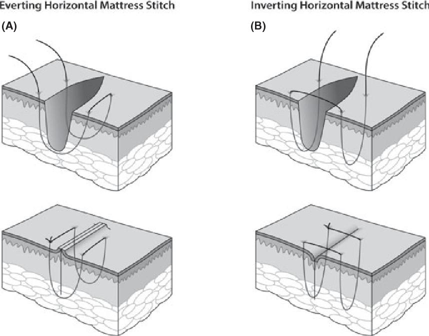 Figure 1 From The Inverting Horizontal Mattress Suture