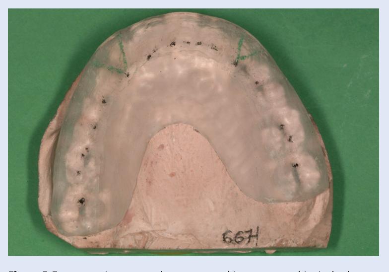 figure 5 from michigan splint and treatment of temporomandibular joint semantic scholar figure 5 from michigan splint and