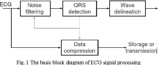 PDF] Matlab implementation of ECG signal processing