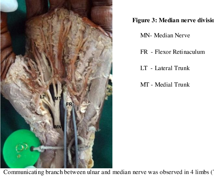 Figure 3: Median nerve division within the flexor retinaculum