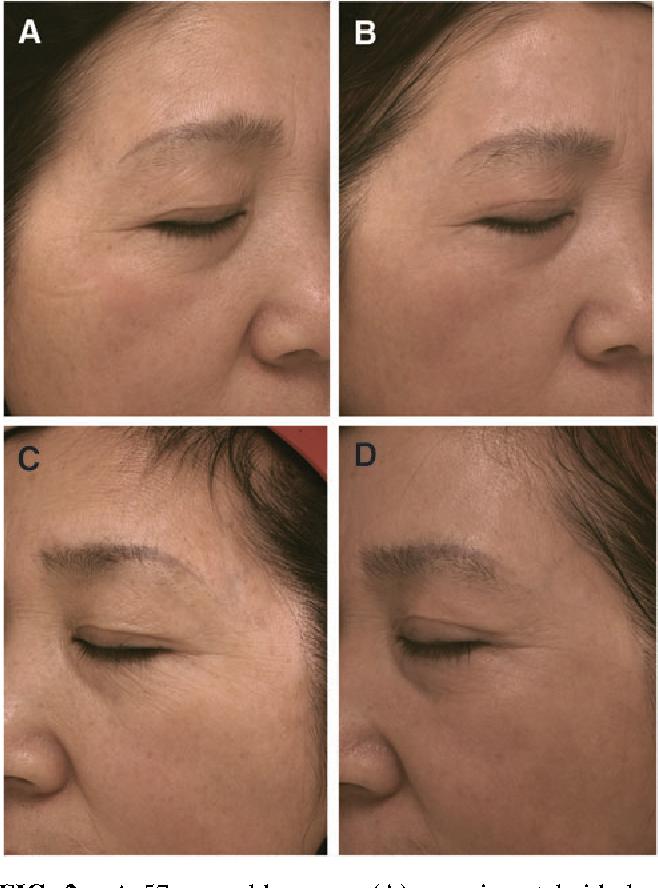 PDF] The Clinical Efficacy of Autologous Platelet-Rich