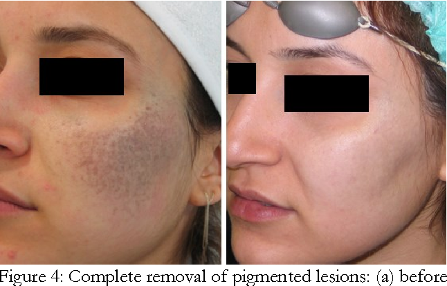 Figure 4 From Treatment Of Nevus Of Ota With 1064 Nm Q