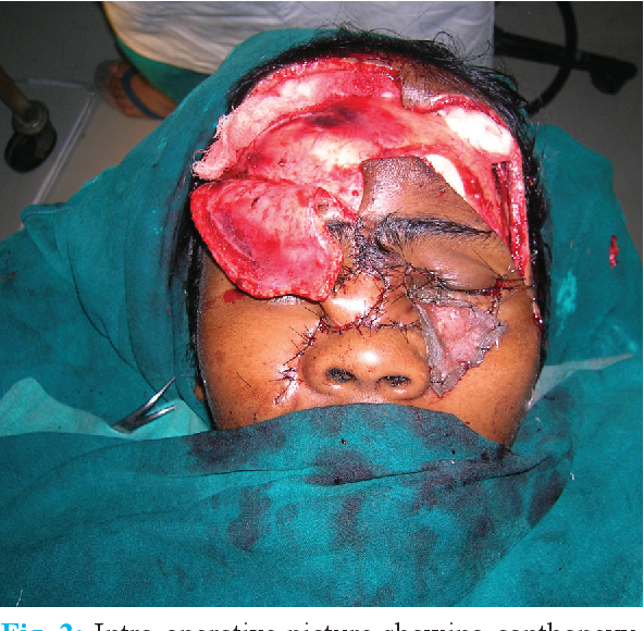 Figure 1 from Face Avulsion and Degloving - Semantic Scholar