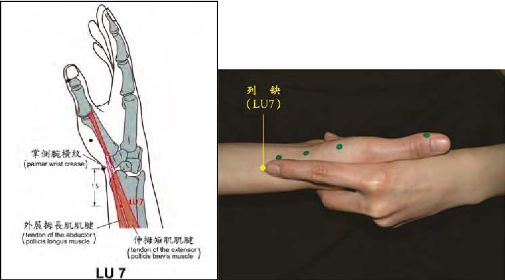 Figure 5 from Acupuncture Analgesia Research and Clinical