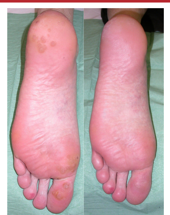 Figure 2 from Intralesional cidofovir for the treatment of
