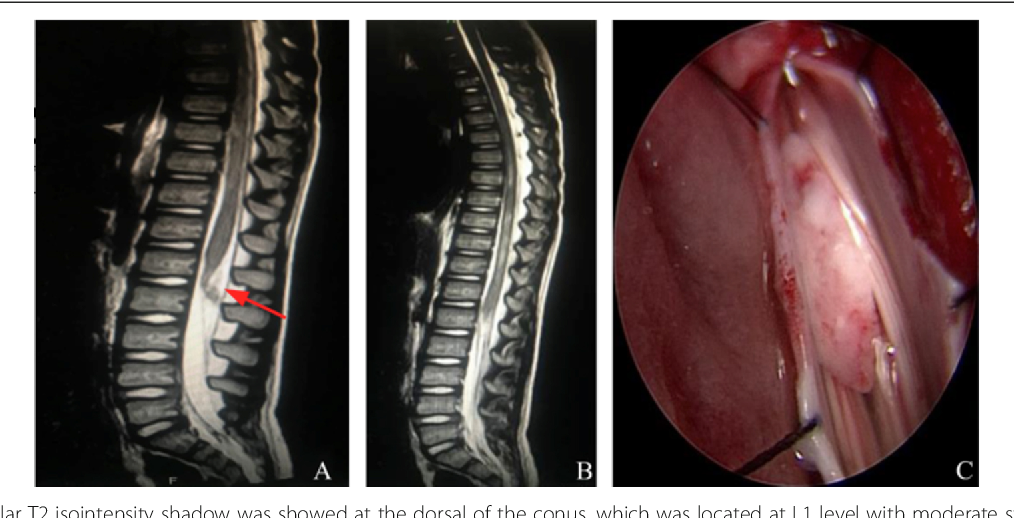 Real Spinal Cord Injury Without Radiologic Abnormality In Pediatric Patient With Tight Filum Terminale Following Minor Trauma A Case Report Semantic Scholar What kind of tissue is the film termina… semantic scholar