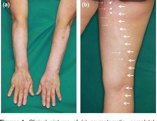 Superimposed Segmental Vitiligo Mixed Vitiligo With Non Segmental Vitiligo And Segmental Vitiligo Along The Narrow Blaschko Lines Type 1a Semantic Scholar