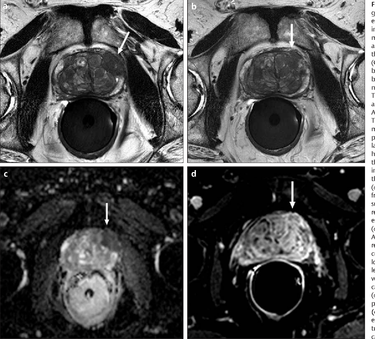 Figure 4 from Local staging of prostate cancer with MRI ...