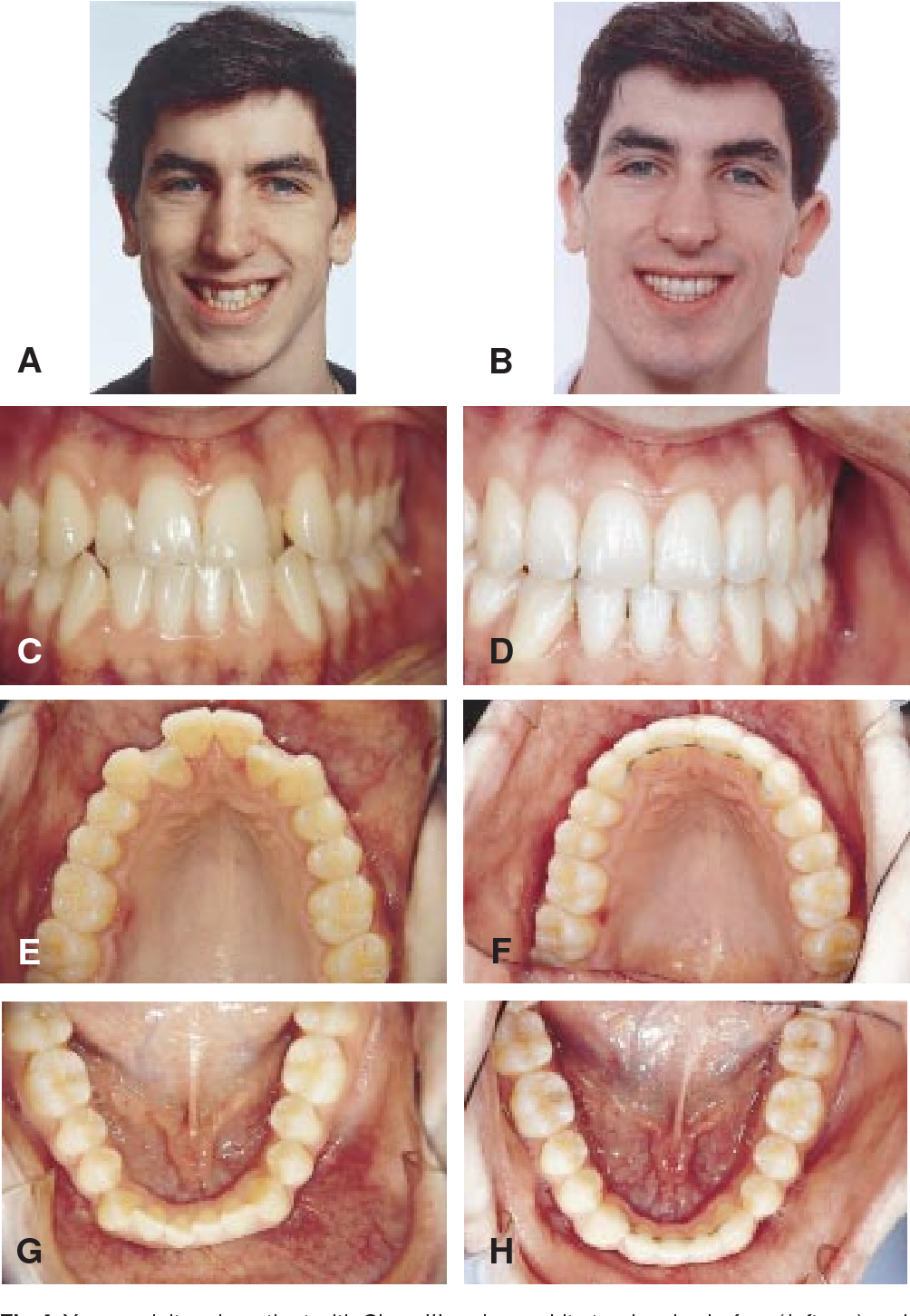 Figure 4 from Effects of mandibular incisor extraction on