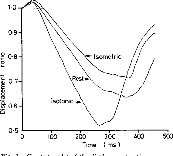 Figure 1 from Echocardiographic assessment   and isotonic
