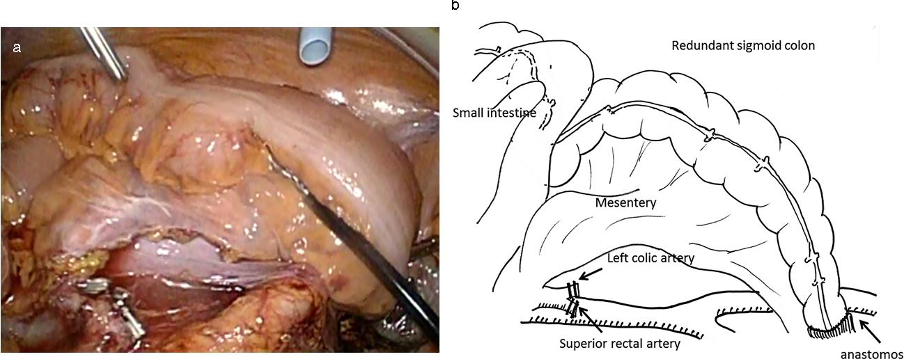 Sigmoid volvulus after laparoscopic surgery for sigmoid