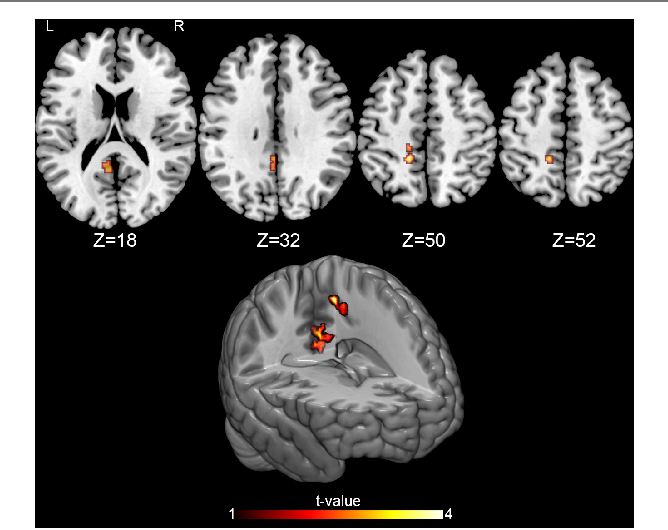 Cerebral Perfusion Changes After Osteopathic Manipulative ...