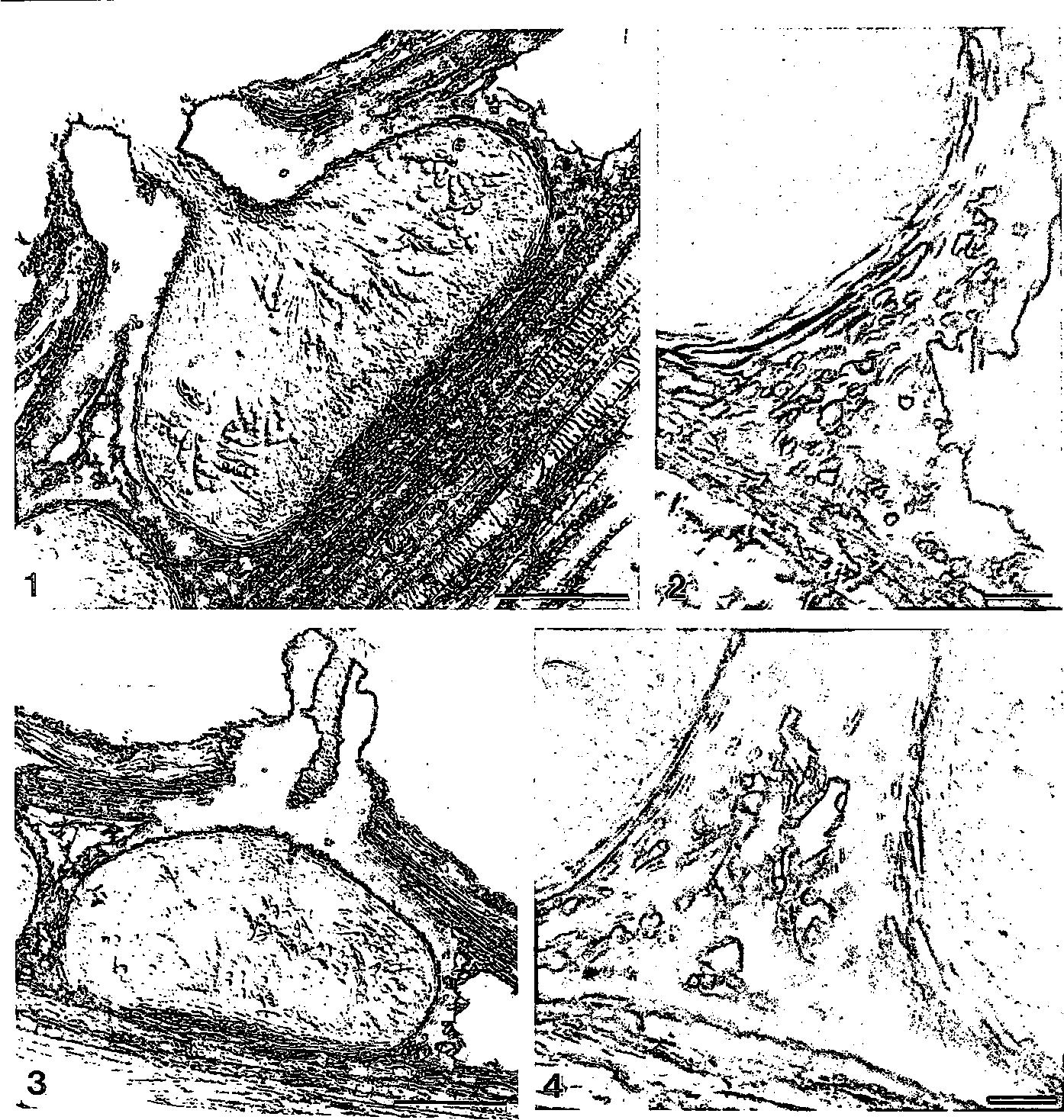 figure 1—4
