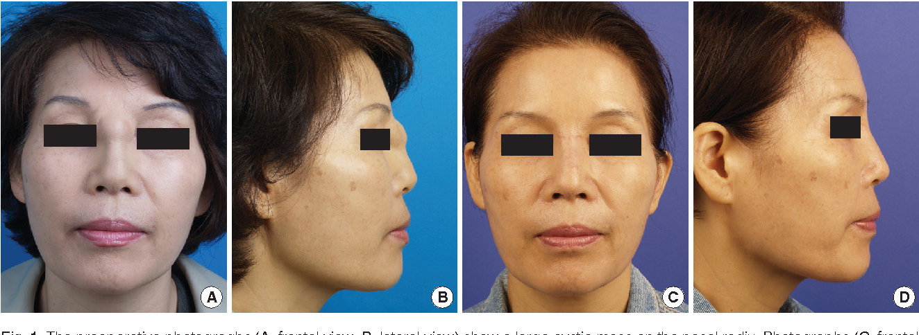 Figure 1 from Foreign Body Inclusion Cyst of the Nasal Radix