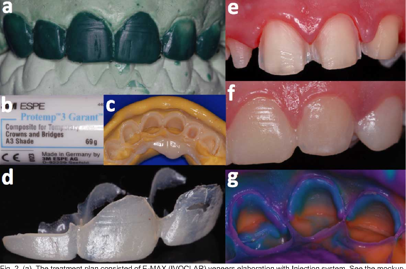 Figure 2 from Aesthetic All-ceramic Restorations: CAD-CAM