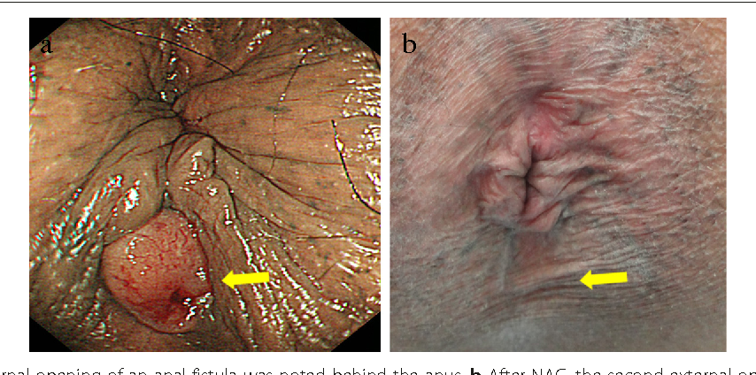 Anal cancer hpv