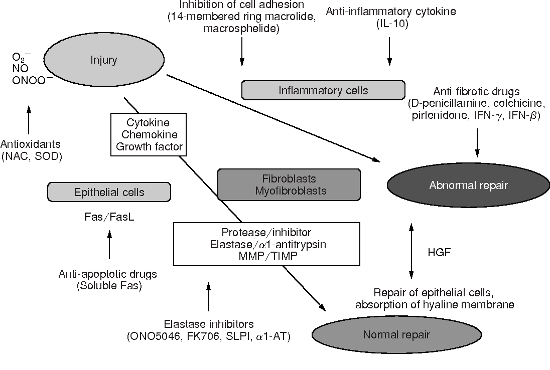 Figure 1 from Idiopathic Pulmonary Fibrosis —Possible new