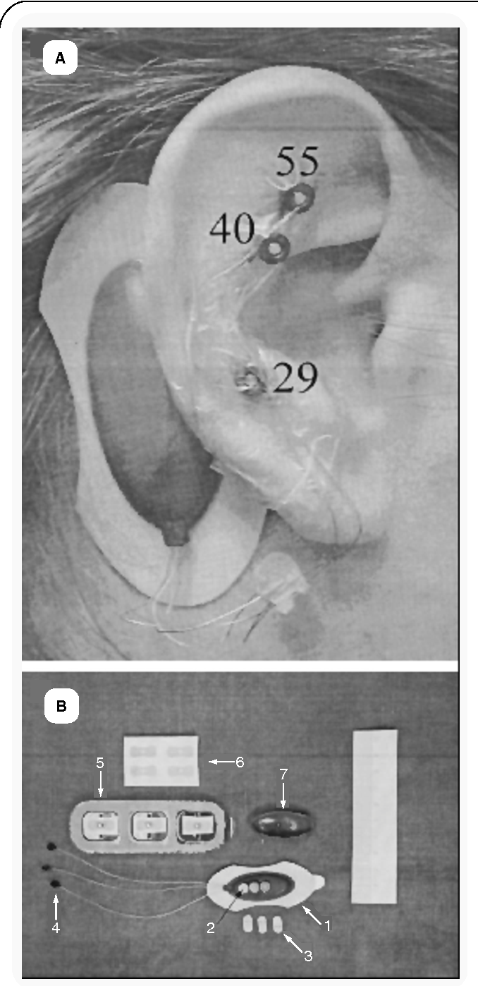 Figure 2 from P-Stim auricular electroacupuncture