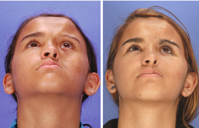 Figure 7 from Parry-Romberg Syndrome: Severity of the