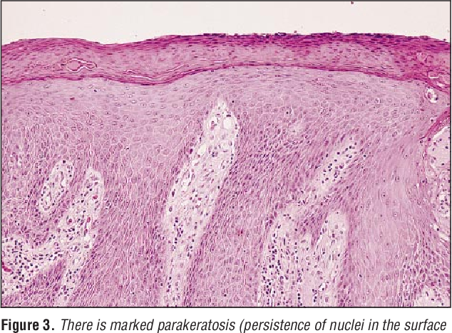 Figure 3 from Lichen simplex chronicus of the eyelid