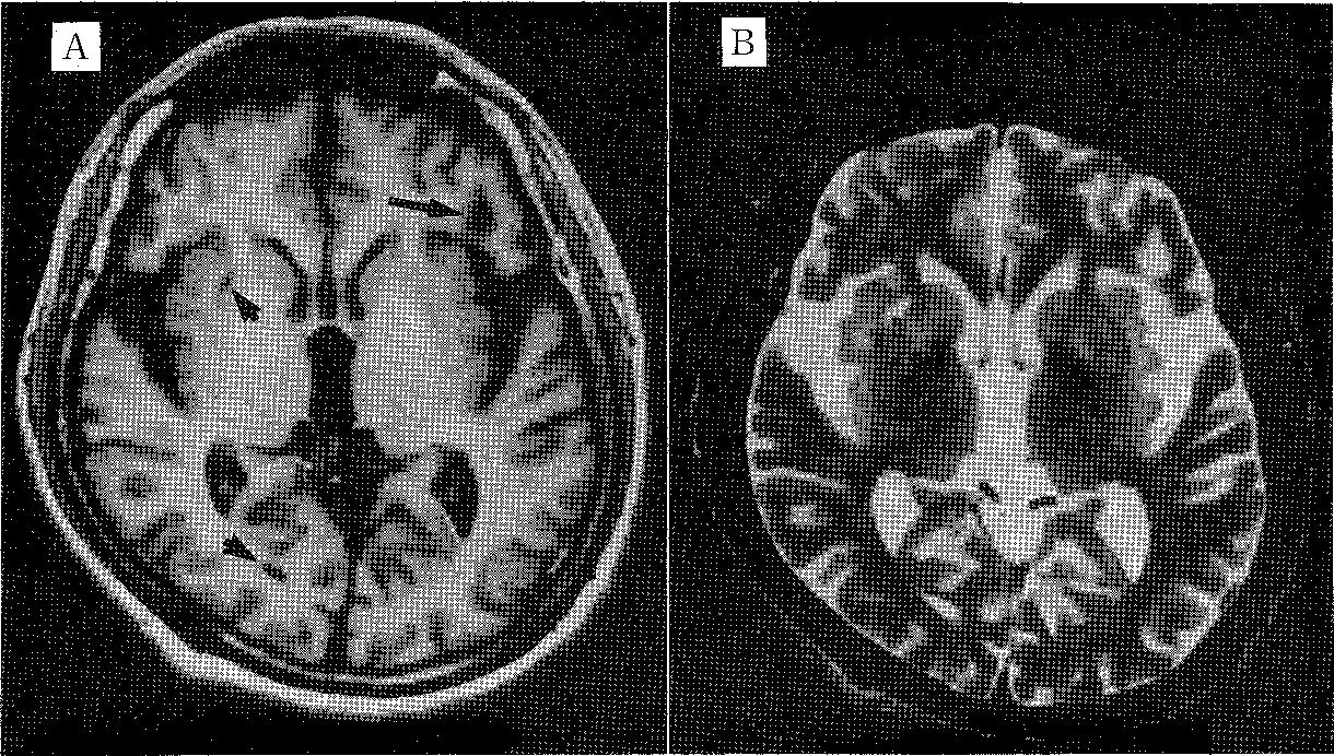 Figure 4 from Sneddon's syndrome (livedo racemosa and