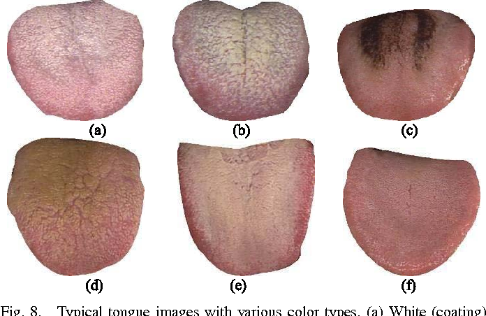 Figure 8 from Statistical Analysis of Tongue Images for