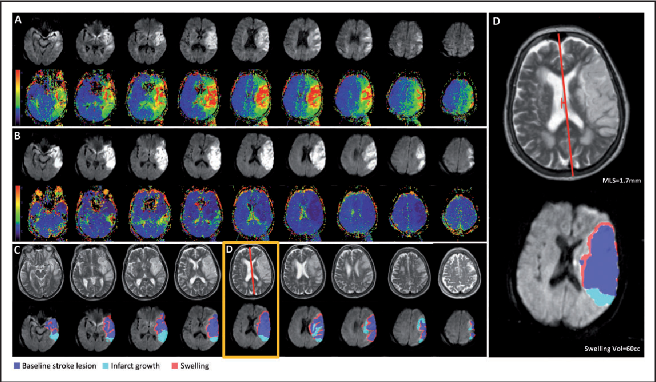 Figure 3 from Reperfusion after ischemic stroke is