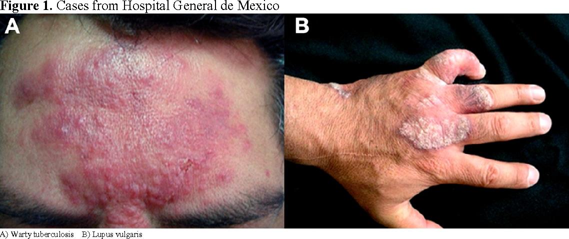 Mycobacterium Tuberculosis Skin Infection