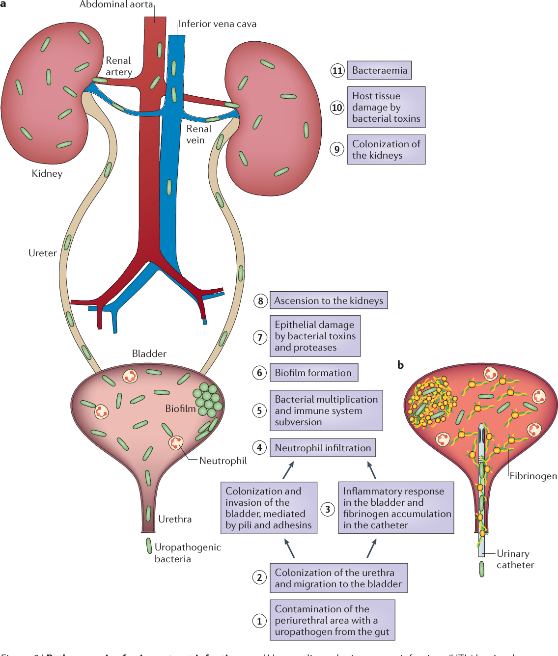 Urinary tract infections: epidemiology, mechanisms of