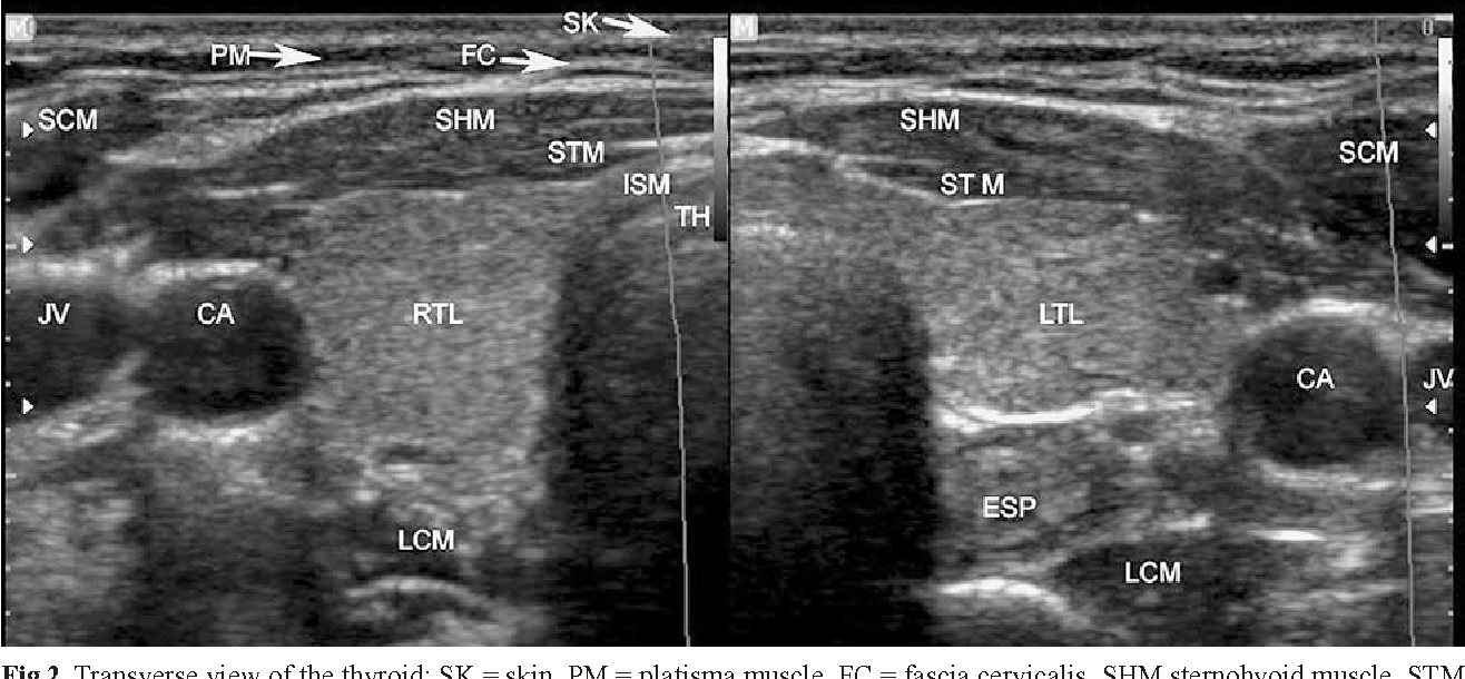 Figure 2 From Thyroid And Parathyroid Ultrasound Semantic Scholar