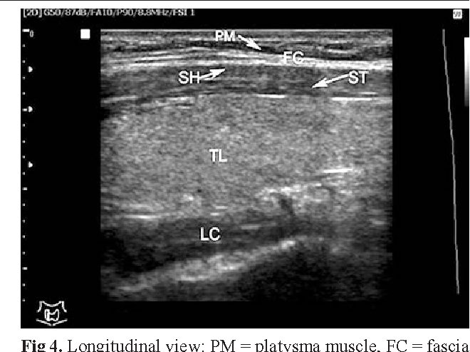 Figure 4 From Thyroid And Parathyroid Ultrasound Semantic Scholar