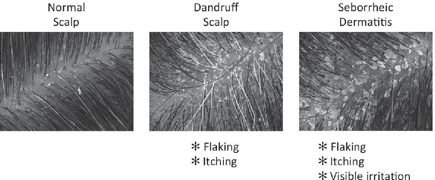 Figure 1 from Dandruff and Seborrheic Dermatitis : A Head