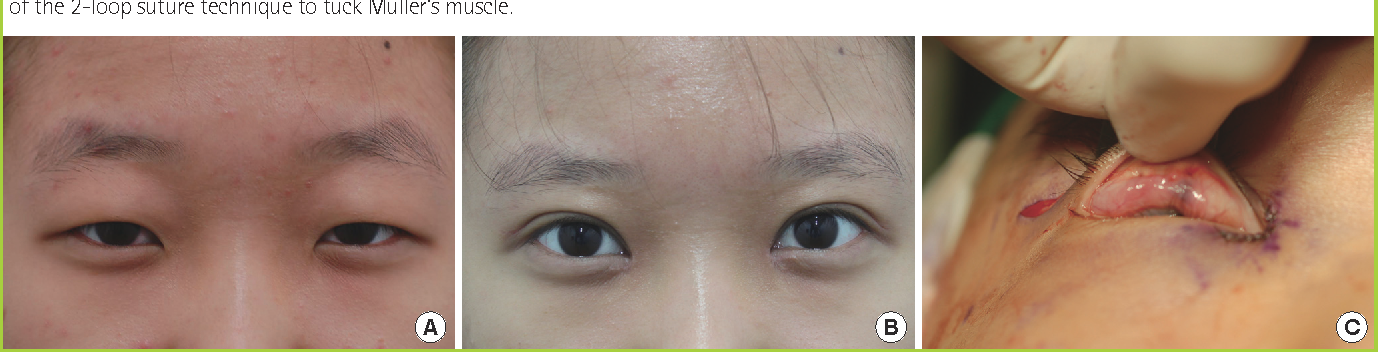 Figure 1 from Mild Ptosis Correction with the Stitch Method