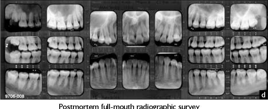 Figure 3 From Forensic Dentistry A Look At Forensic Dentistry Part 1 The Role Of Teeth In The Determination Of Human Identity Semantic Scholar